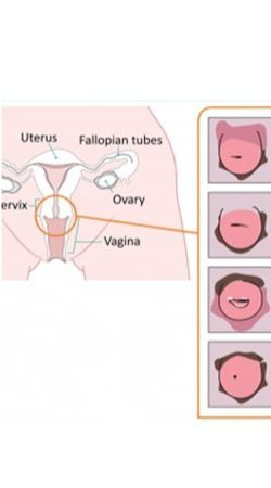 The Extra Pleasure Spot: Cervical Orgasms