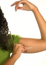 Contraceptive Series Part 4: Implanon, the Hormonal Implant